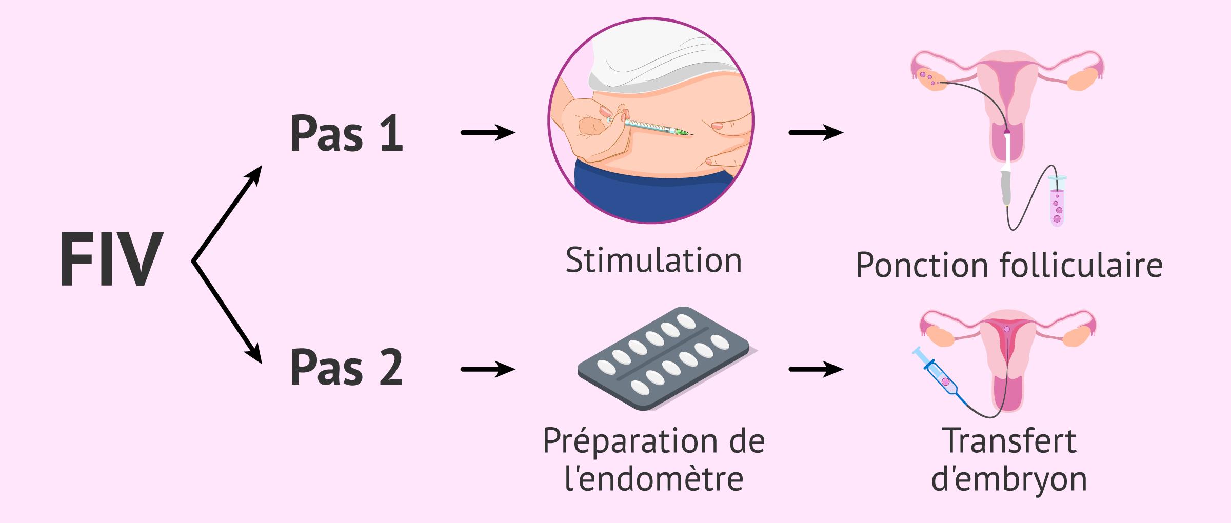 Imagen: Étapes de la procédure de FIV