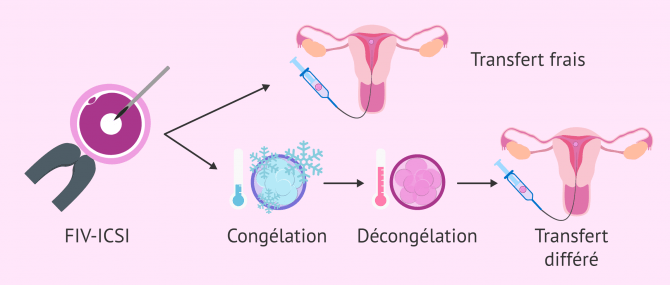 Transfert d'embryons congelés : quel est le taux de réussite ?