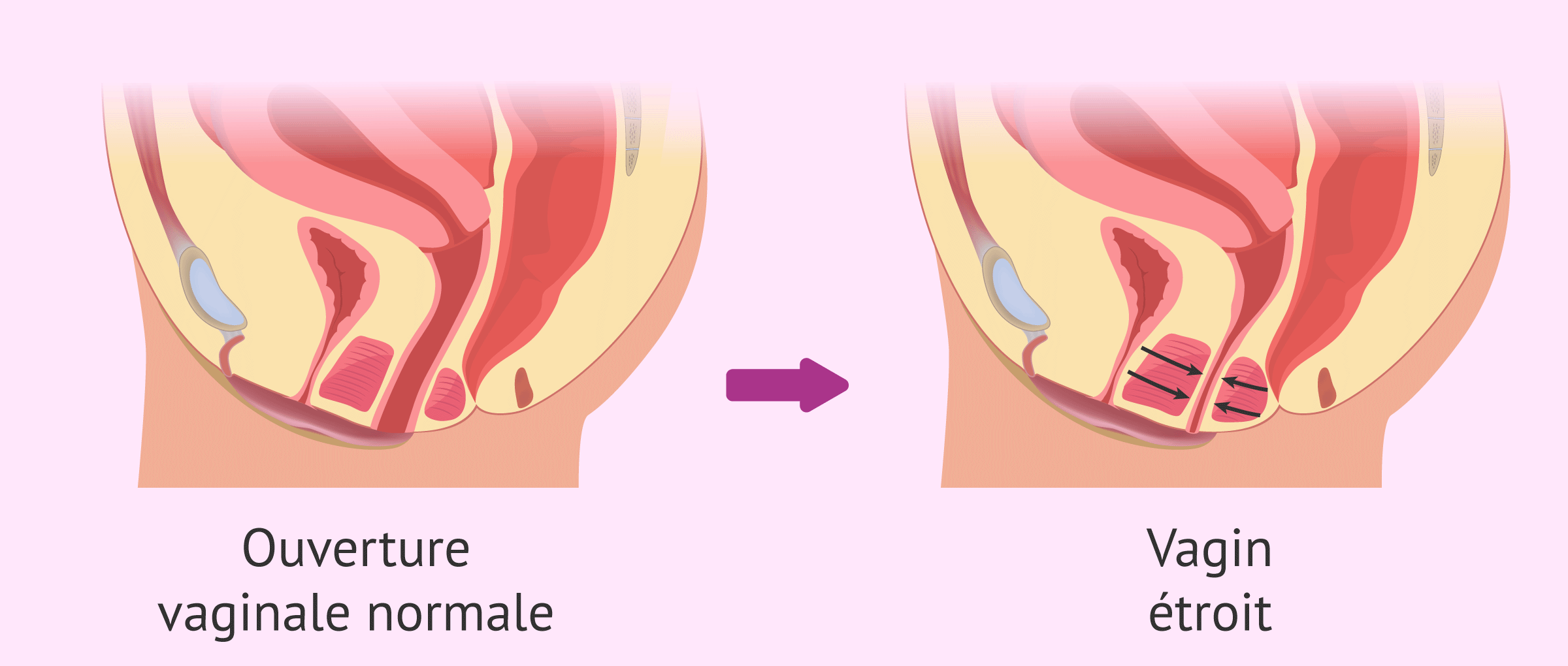 Comparaison entre un vagin normal et un vagin étroit