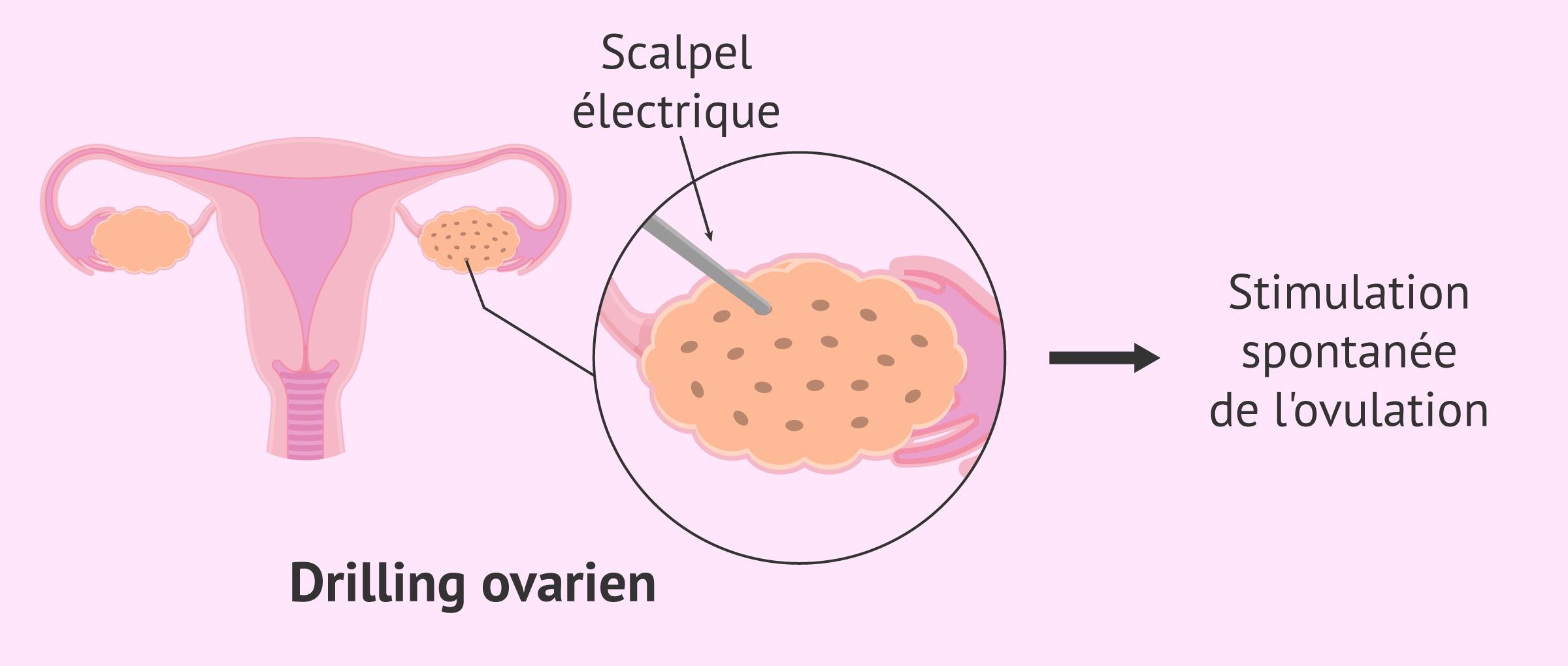 Drilling ovarien pour perforer l'ovaire