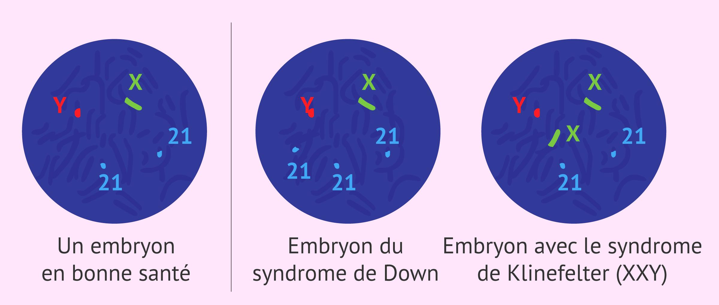 Imagen: Analyse chromosomique FISH
