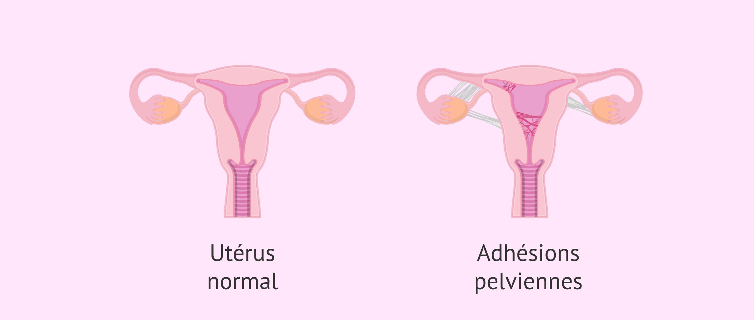 l'utérus avec des adhérences pelviennes