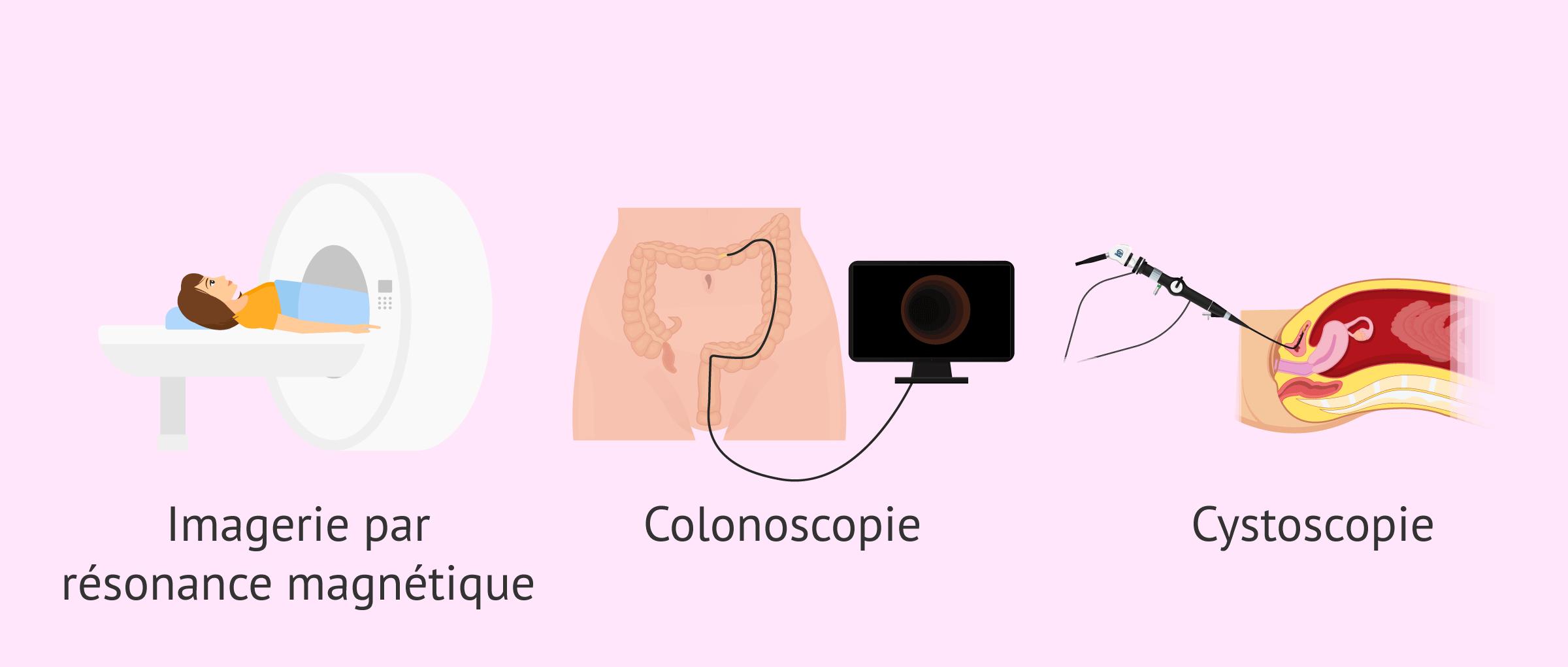 Imagen: Tests complémentaires pour diagnostiquer l'endométriose