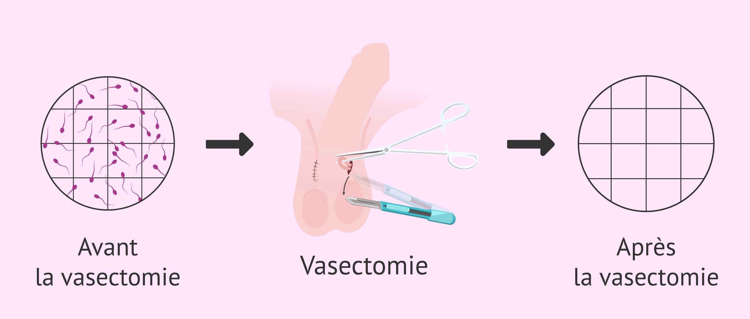 Imagen: Absence de spermatozoïdes après une vasectomie