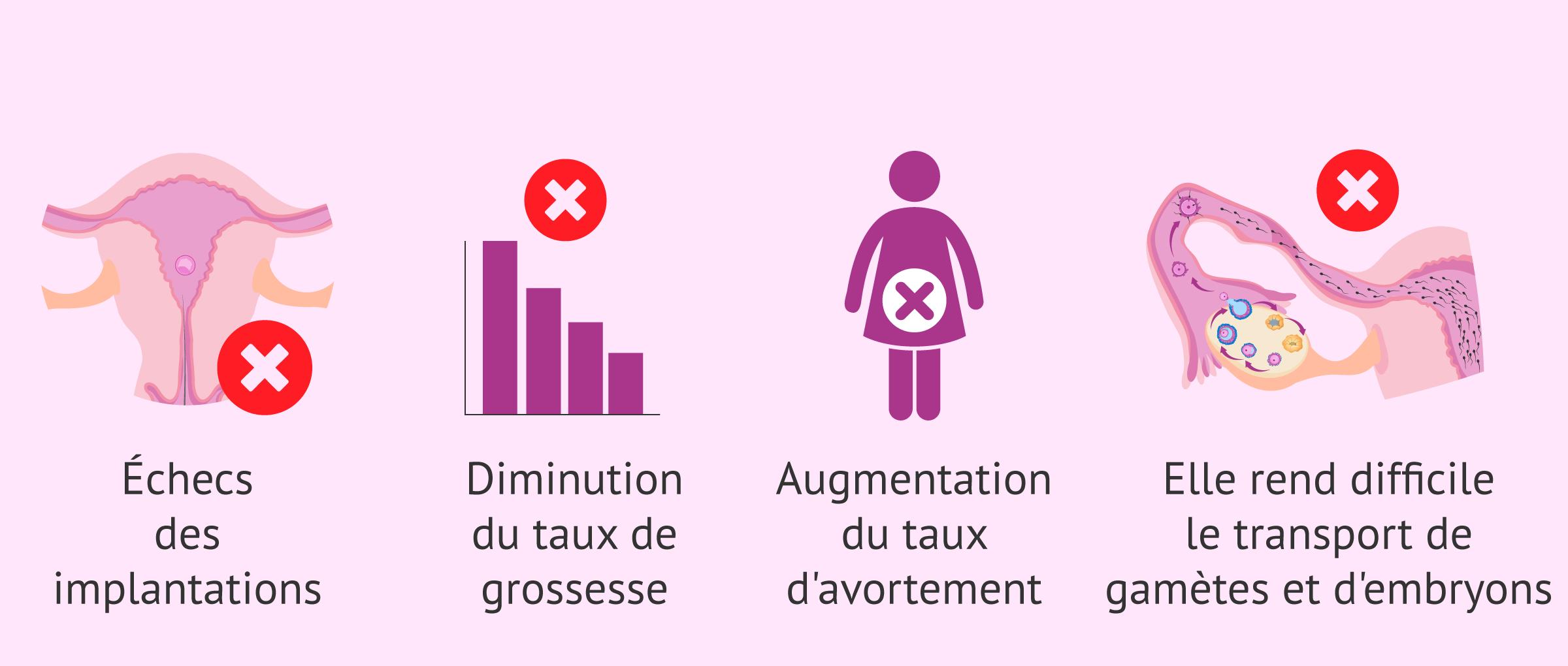 Conséquences de l'adénomyose sur la fertilité