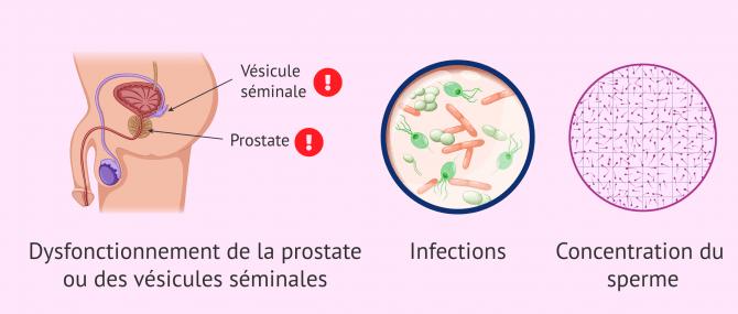 Imagen: Causes de la variation de la consistance du sperme