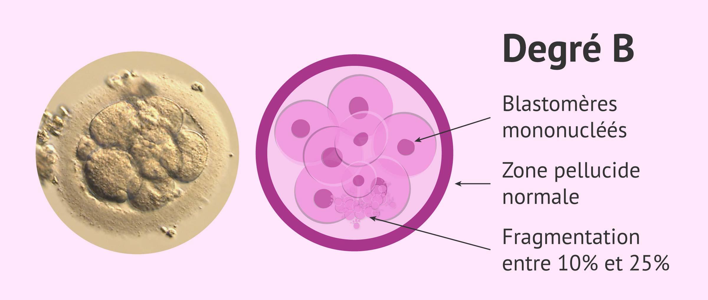 Embryo qualité B