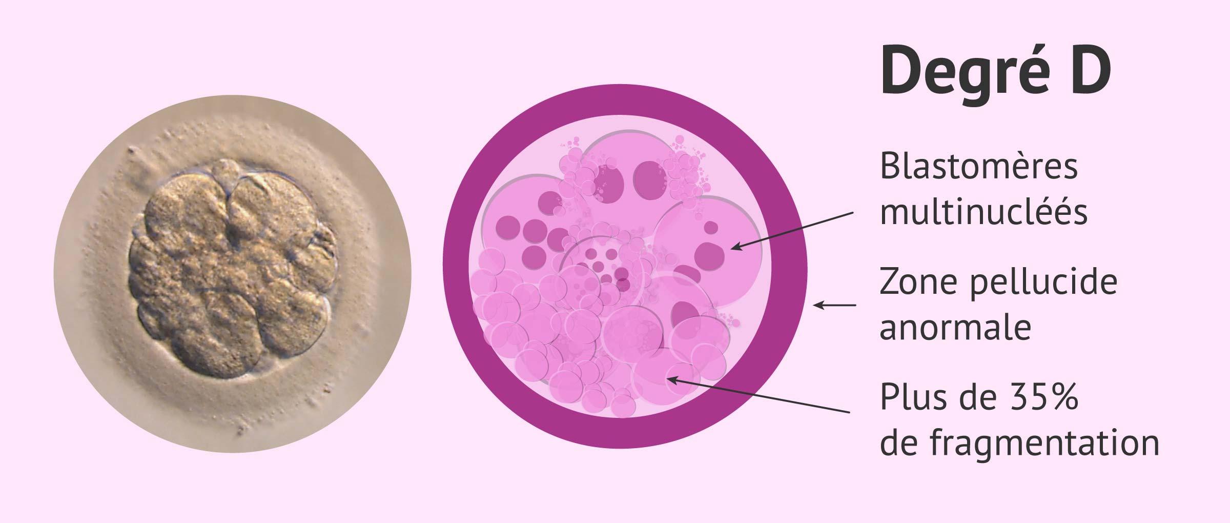 Imagen: Embryo qualité D