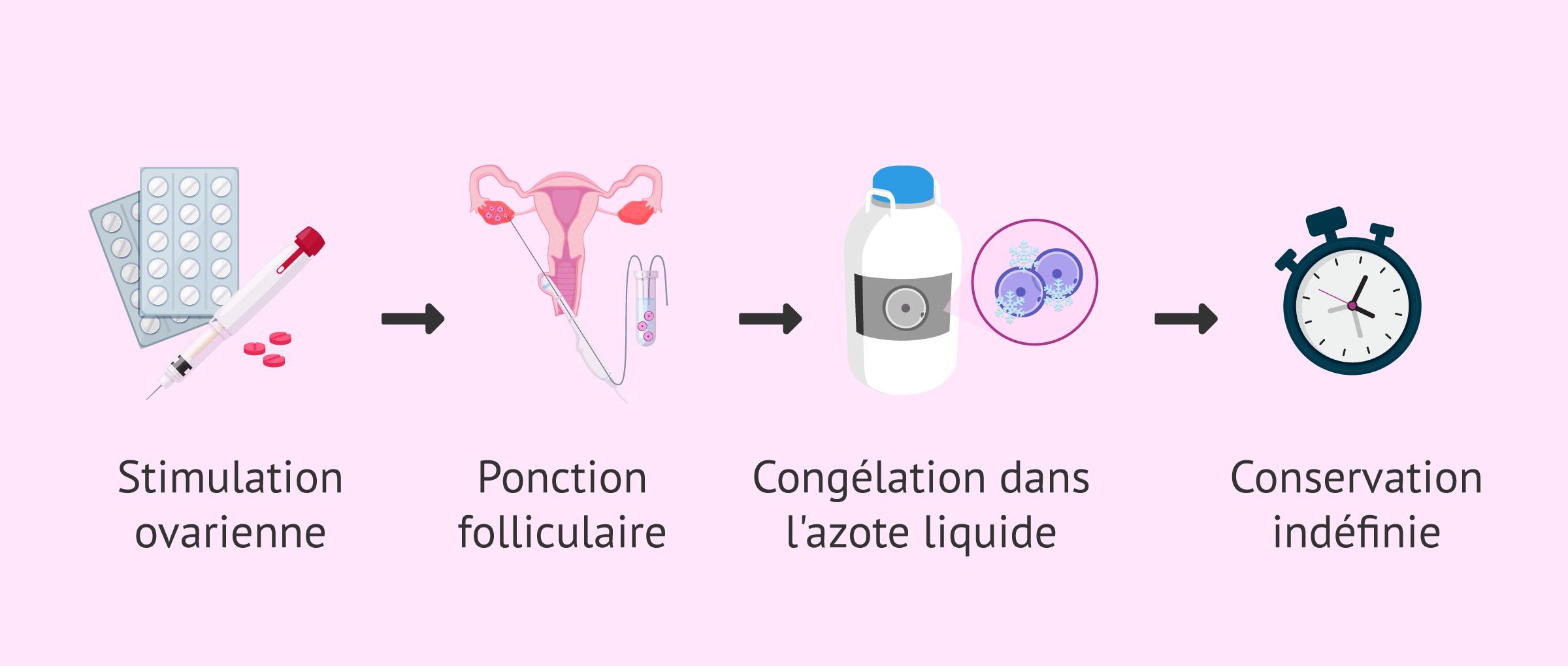 Imagen: Processus de préservation de la fertilité féminine