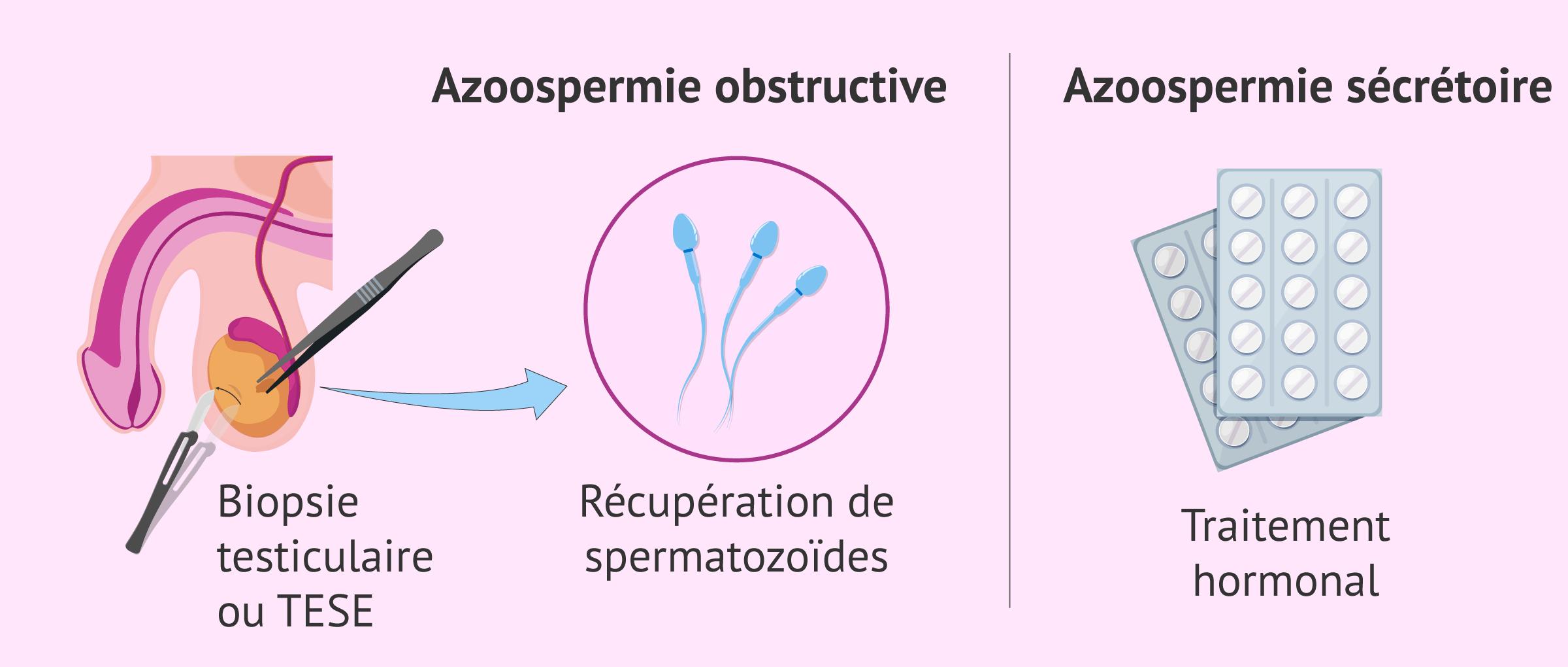 Options thérapeutiques pour l'azoospermie