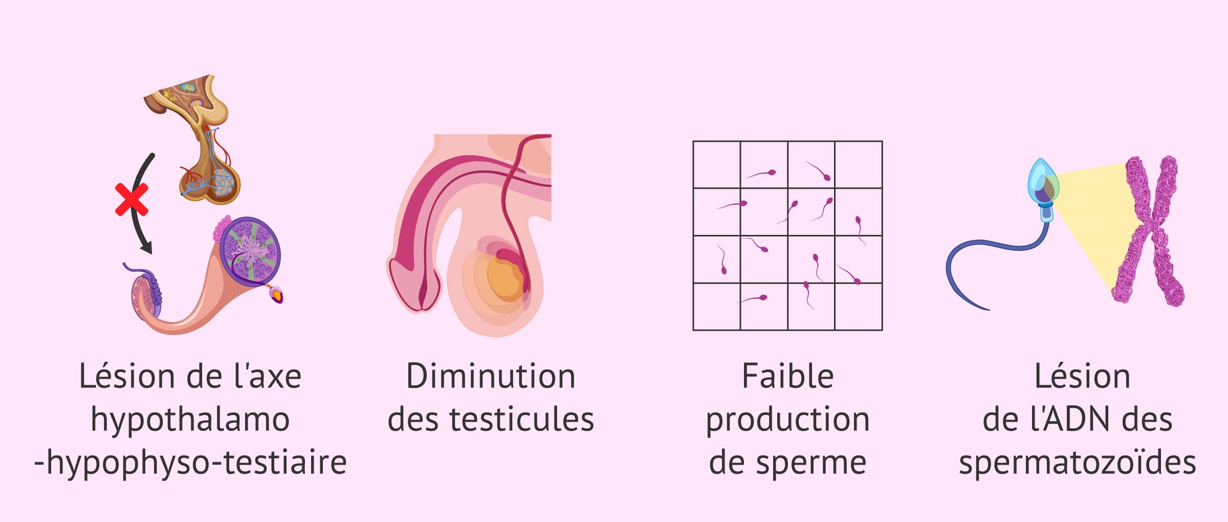 Conséquences de la varicocèle sur la fertilité