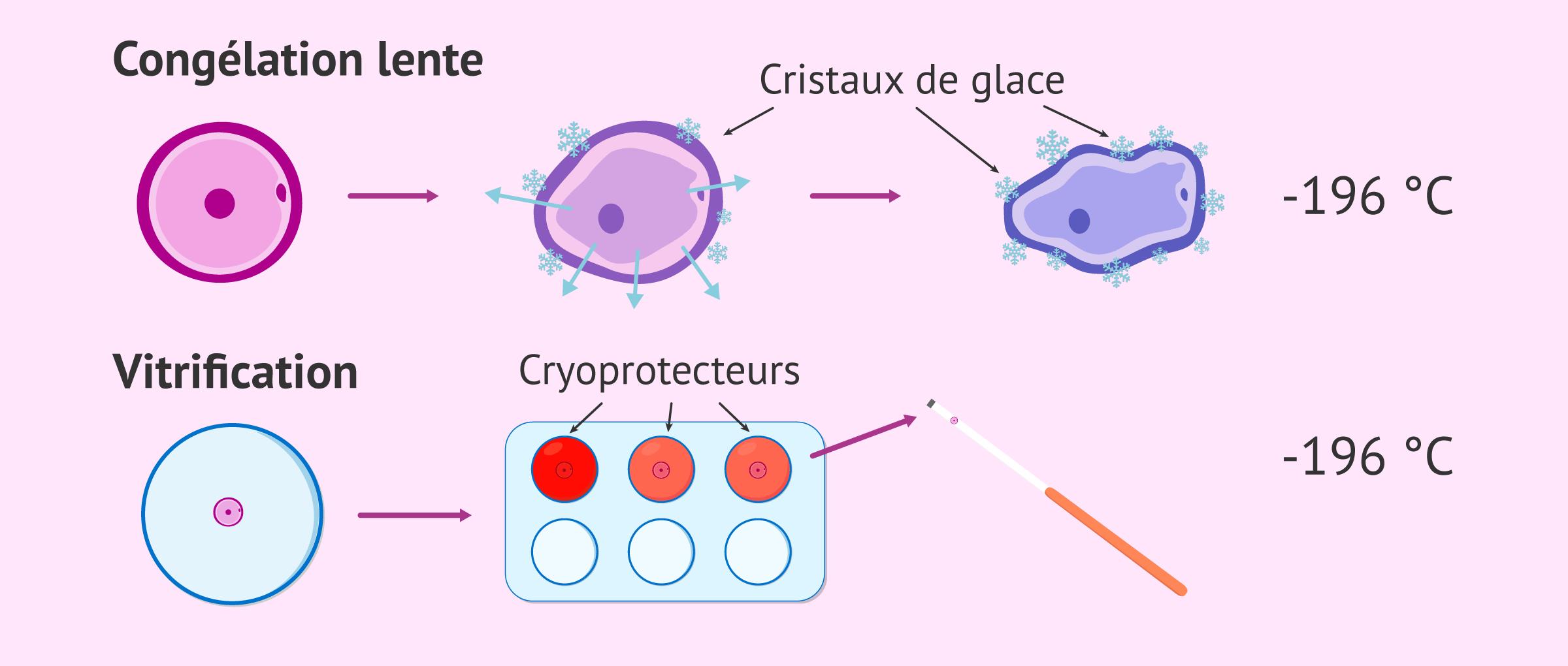 Qu'est-ce qu'une FIV avec des ovules vitrifiés et quels sont les résultats?