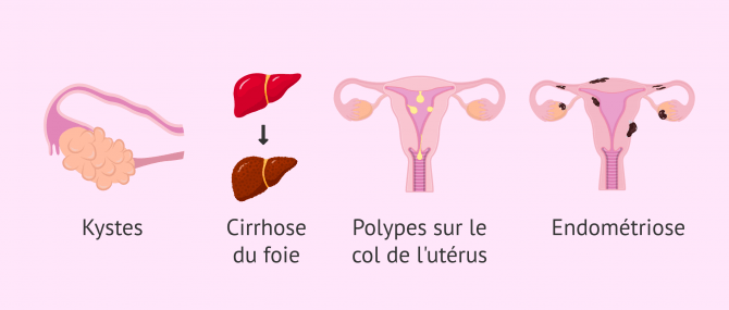 Imagen: Facteurs de risque de l'hyperplasie endométriale