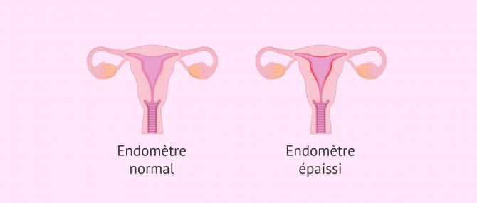 Imagen: Endomètre normal et endomètre avec hyperplasie