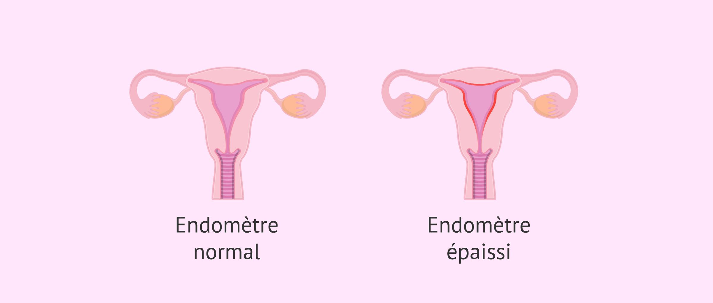 Qu'est-ce que l'hyperplasie de l'endomètre et pourquoi se produit-elle?