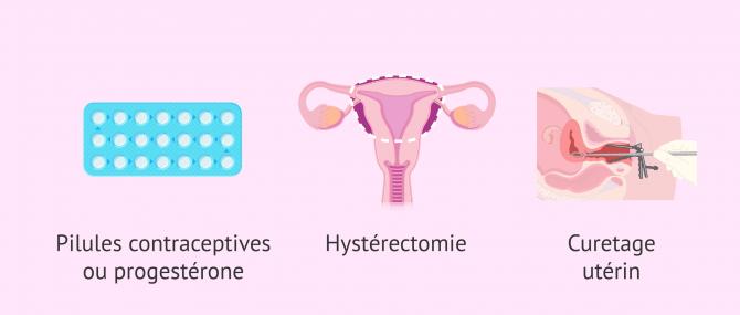 Imagen: Options de traitement de l'hyperplasie de l'endomètre