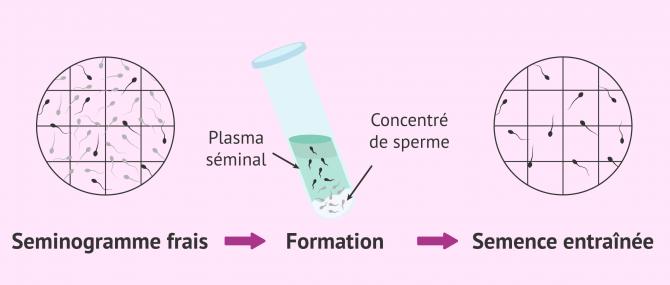 Imagen: Résultats du séménogramme REM