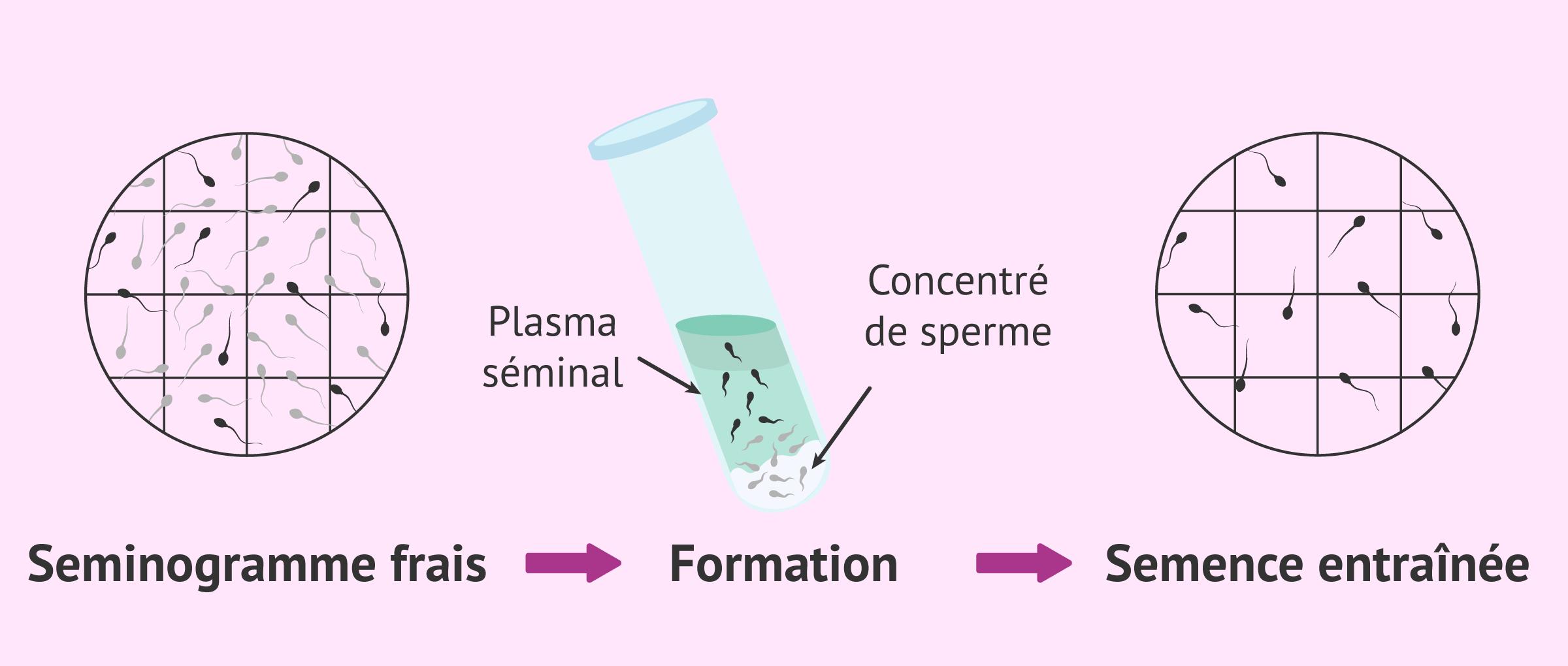 Séminogramme avec nombre de spermatozoïdes mobiles (REM)