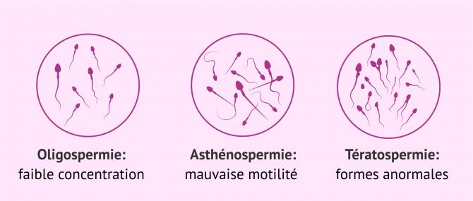 Imagen: Oligoasthénotératospermie