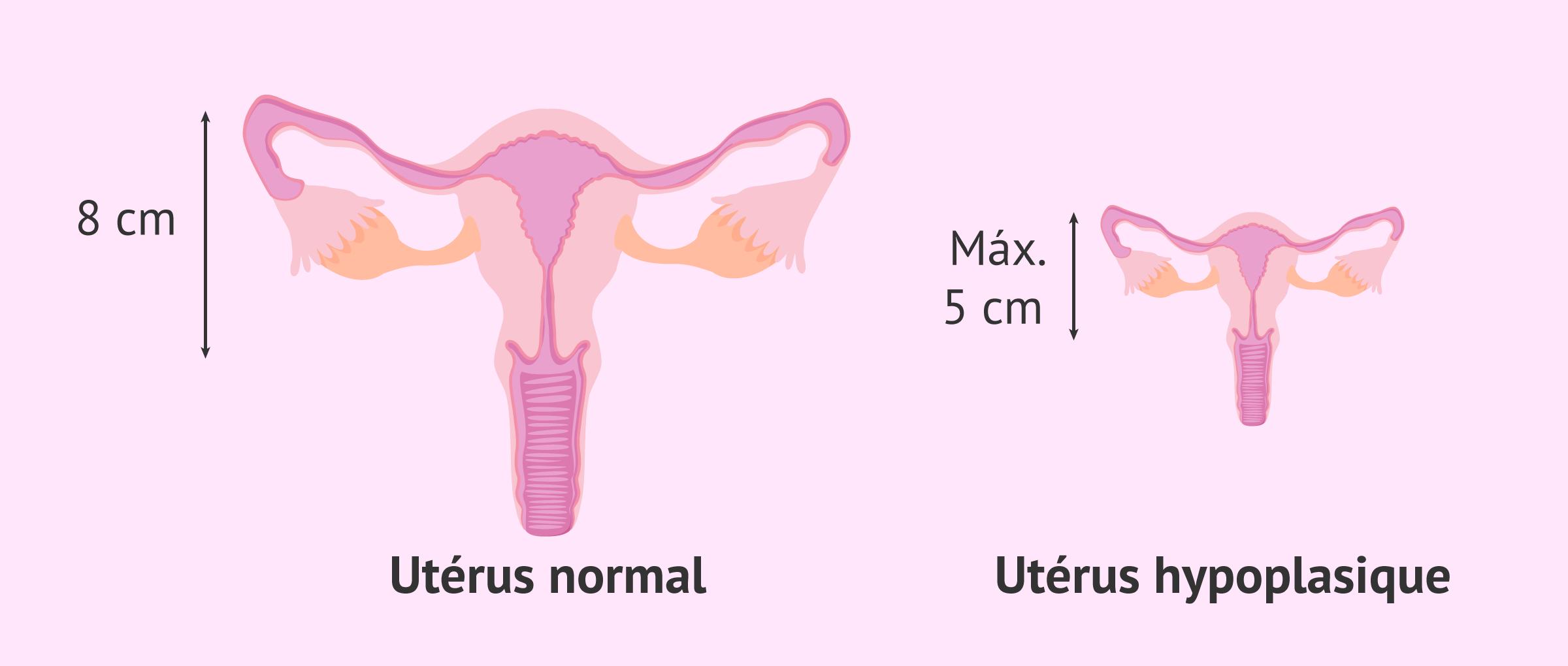 Qu'est-ce que l'utérus infantile et quelle est la probabilité d'une grossesse?