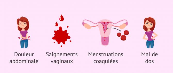 Imagen: Symptômes biochimiques de la grossesse